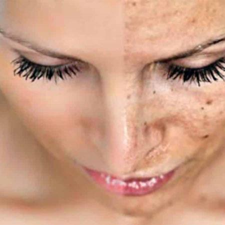 Отбеливающий крем для лица: лекарство от веснушек